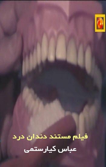 دانلود فیلم دندان درد